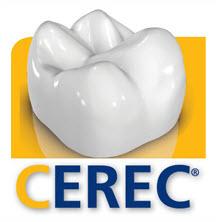 cerec-crown